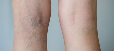 Spider veins can be treated with sclerotherapy
